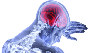 Brain Injury: You May Be Compensated
