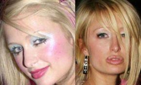 Steps to Follow When Your Cosmetic Surgery Goes Wrong