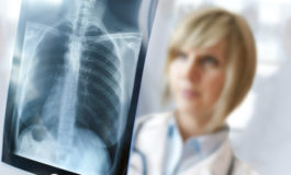 Key Things You Should Know About Filing a Mesothelioma Lawsuit