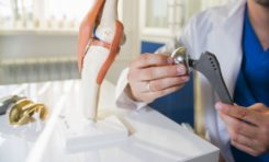 What Is a Hip Replacement Lawsuit and What Are My Options?
